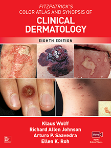 FITZPATRICK'S ATLAS - SKIN INFECTIONS