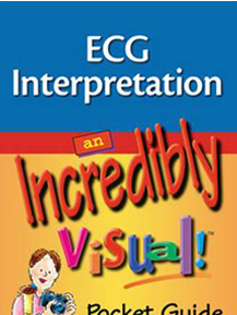ECG Interpretation: An incredibly Visual Pocket Guide