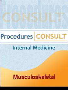Procedures Consult: Internal Medicine - Musculoskeletal Procedures
